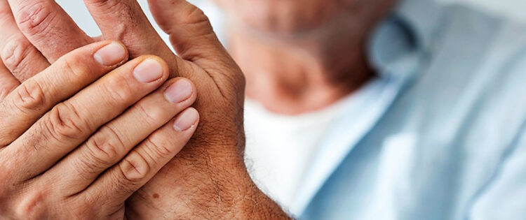 Arthritis – The Agony and The Answers